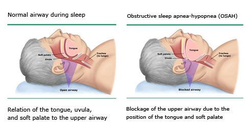 how to stop snoring caused by soft palate