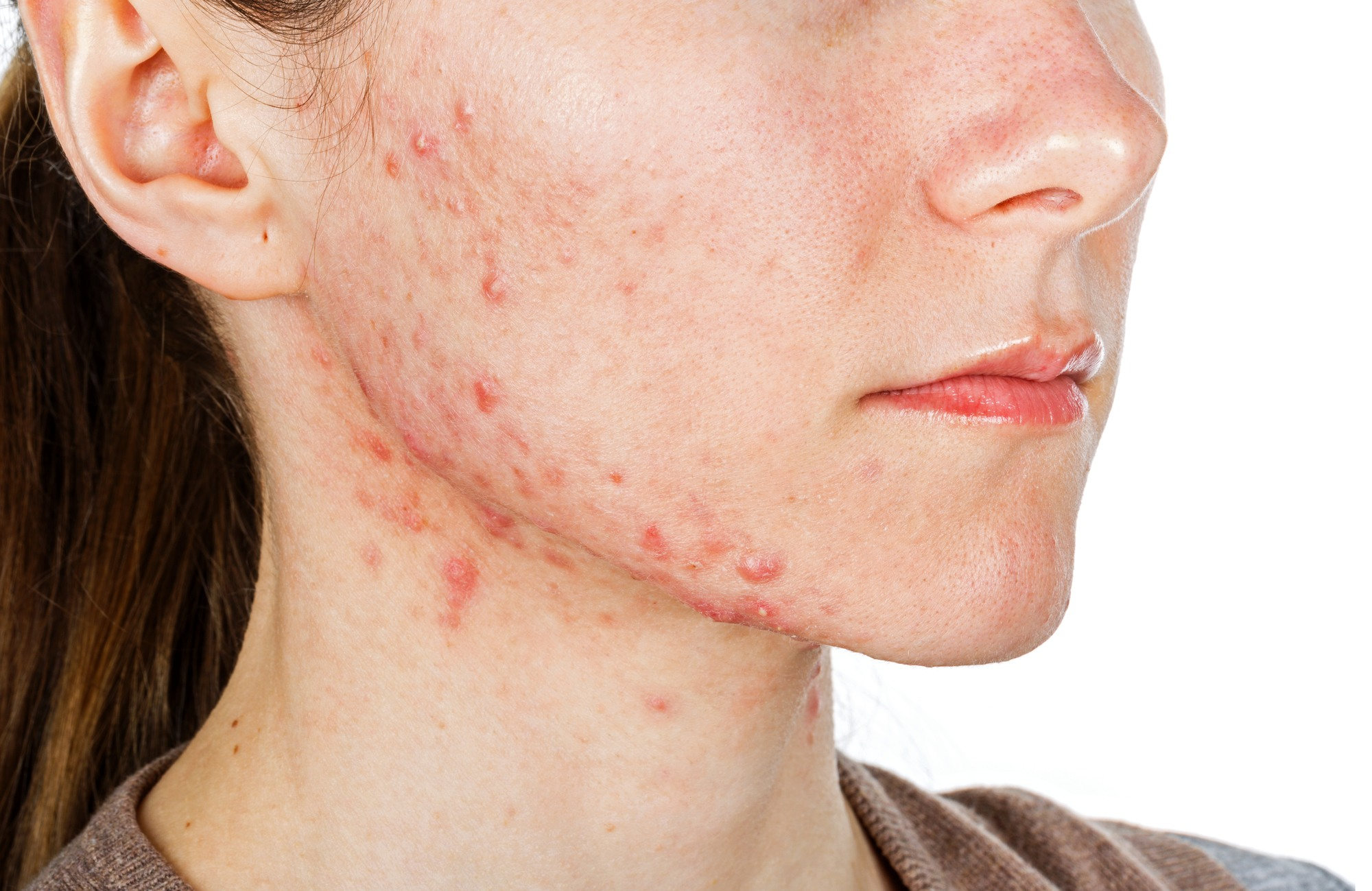 Whats the Best Skin Cleansing Routine for Rosacea