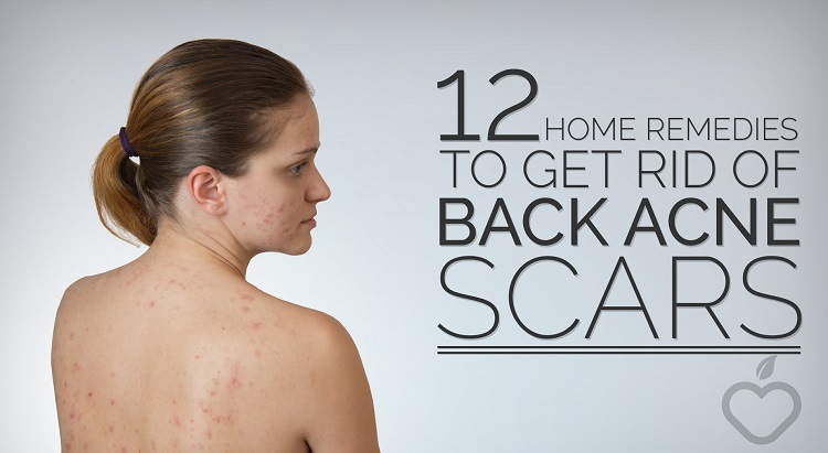12-Home-Remedies-To-Get-Rid-Of-Back-Acne-Scars