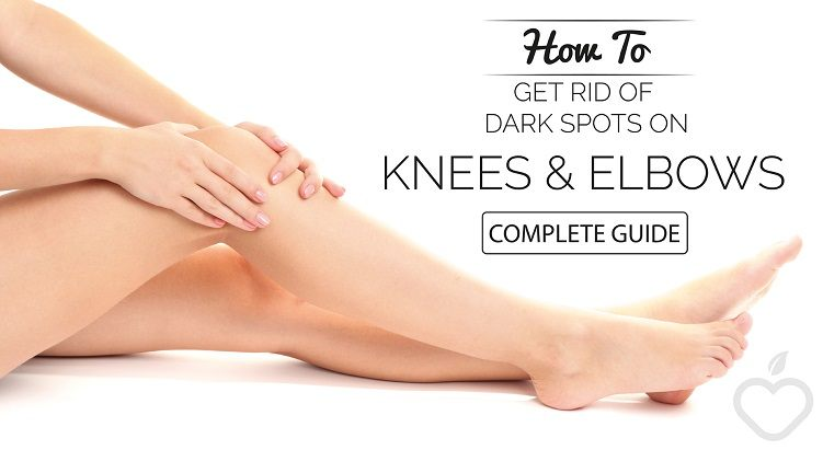How To Get Rid Of Dark Spots on Knees and Elbows Fast (Complete Guide)