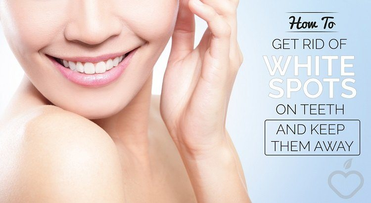 How to Get Rid of White Spots on Teeth and Keep Them Away
