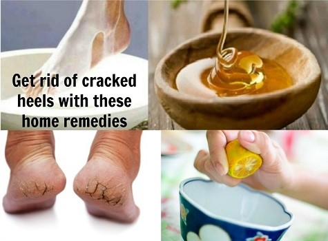 How To Get Rid Of Dry Cracked Feet (Complete Guide)