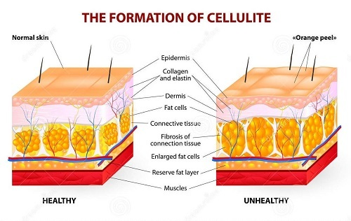 CELLULITE FORMATION