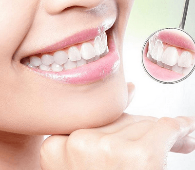 How To Get Rid Of Cotton Mouth Quickly and Easily