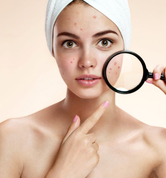 All You Need To Know About The Oil Cleansing Method For Acne
