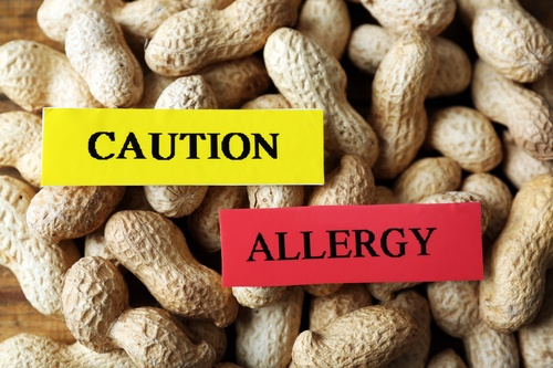 Image 5 16 - All You Need To Know About Peanut Allergies And Symptoms To Look Out For