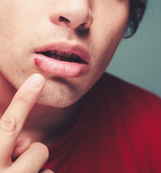How To Treat Coldsores In 8 Easy Steps
