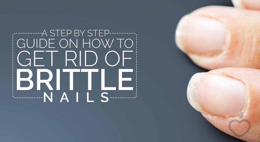 Brittle-Nails-Image-Design-1