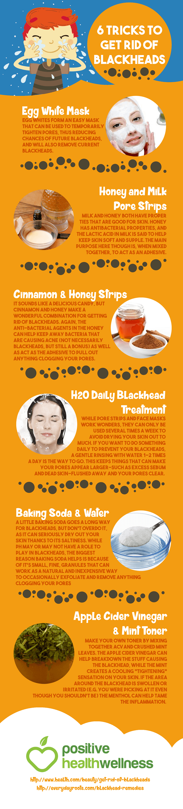 6 Tricks to Get Rid of Blackheads