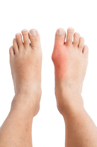 subhead2 - How Do a Low-Carb Diet Eliminate Risks of Gout?