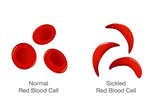 an introduction to the issue of sickle cell anemia a blood disorder Doctors now have two medications to treat sickle cell disease, an inherited disorder that causes the body to produce abnormal red blood cells, said dr caterina minniti, director of the sickle cell center for adults at montefiore medical center in new york city.