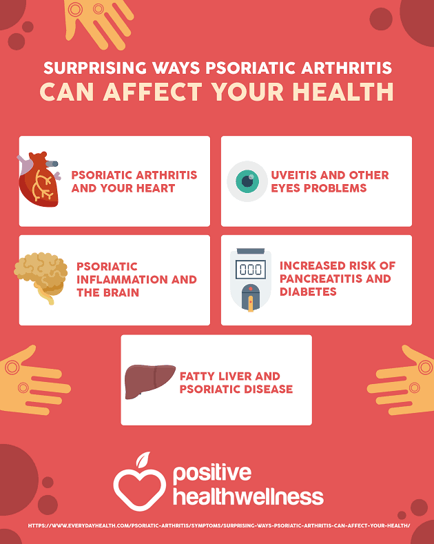 5 Ways Psoriatic Arthritis Can Affect Your Health