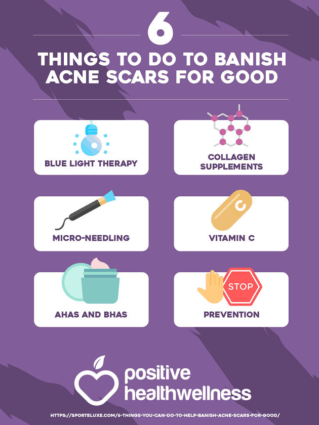 6 Things To Do To Banish Acne Scars For Good