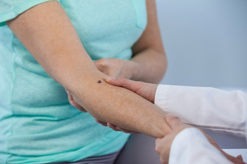 Coping - Every part You Have to Know About Squamous Cell Carcinoma