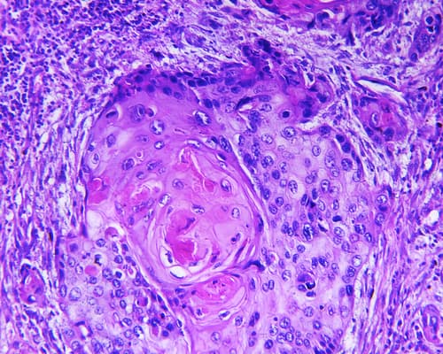 Squamous Cell Cancer Symptoms - Every part You Have to Know About Squamous Cell Carcinoma