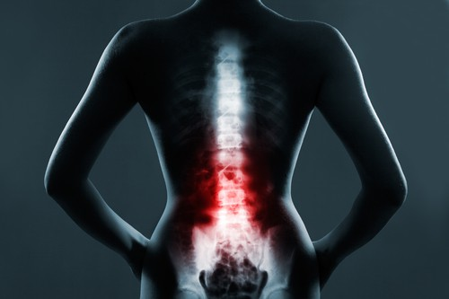 What Can Go Wrong with the Lumbar Spine - Every little thing You Must Know About Decrease Again Ache (Causes and Cures)
